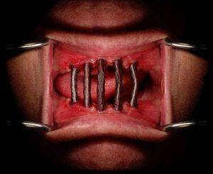 Concert – Napalm Death + Blockheads + Whoresnation